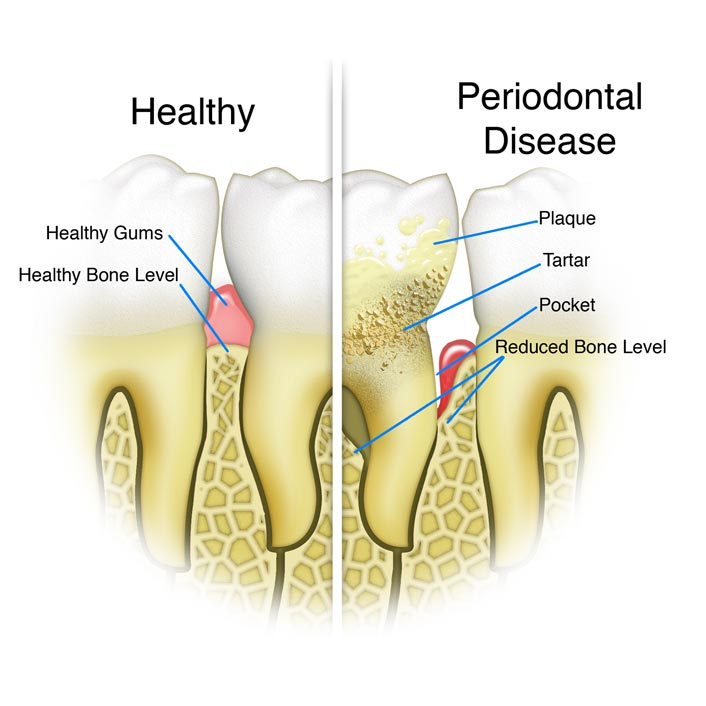 Gum Disease And Receding Gums Treatment Dentist In St
